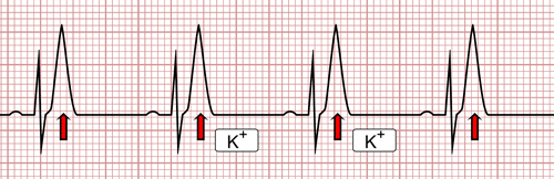 Hyperkaliémie et ECG