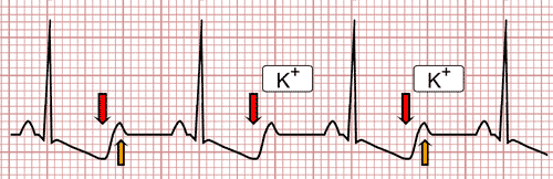 Hypokalemia on the EKG