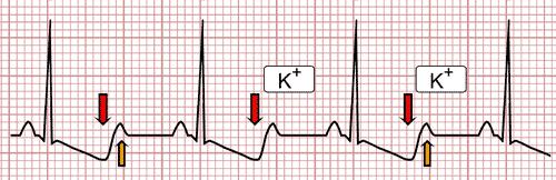 Hipocalemia no ECG