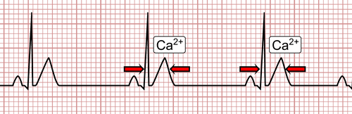 Hypercalcemia on the EKG