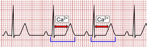 Hypocalcemia on the EKG