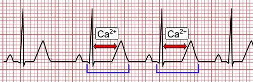 Hypocalcemia on the EKG