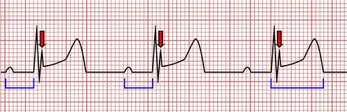 EKG and Hypothermia