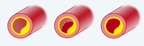 Isquemia, Lesão e Necrose no ECG