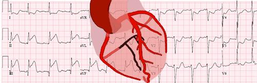 Localização da Artéria Obstruída em um Infarto