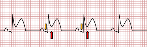 Acute Pericarditis on the EKG