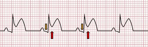 Acute Pericarditis on the EKG