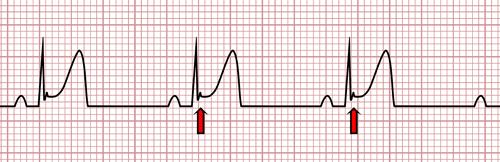 Repolarização Precoce no ECG