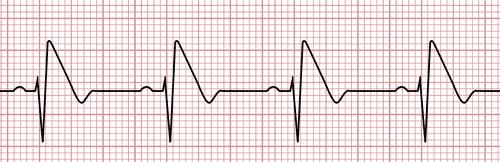 Syndrome de Brugada sur l'électrocardiogramme