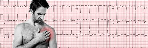 Eletrocardiograma da Síndrome Coronariana Aguda