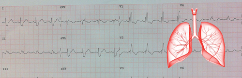 Embolie pulmonaire et ECG
