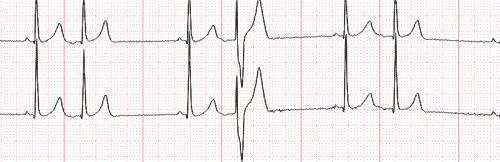 Ashman Phenomenon on the Electrocardiogram