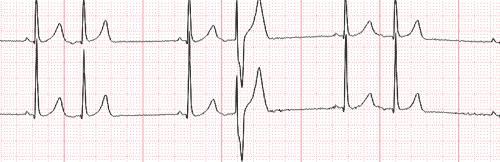 Phénomène d'Ashman et électrocardiogramme