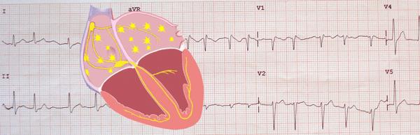 Fibrillation auriculaire dans l'électrocardiogramme