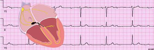 Blocs atrio-ventriculaires
