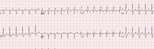 Idiopathic Fascicular Left Ventricular Tachycardia
