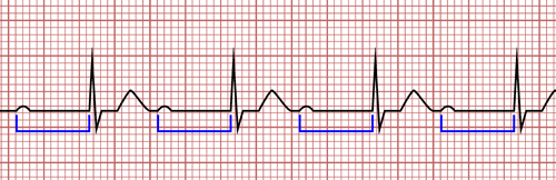 Bloc atrio-ventriculaire du premier degré