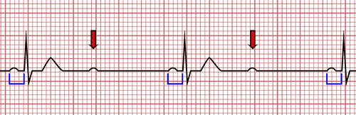 Second Degree Atrioventricular Block