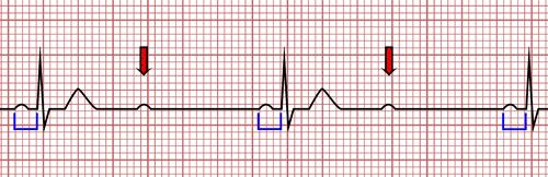 Blocs atrio-ventriculaires du deuxième degré