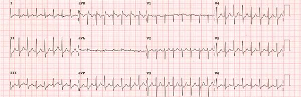 Supraventricular Tachycardias EKG