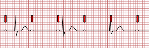 Third Degree Atrioventricular Block