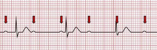 Bloc atrio-ventriculaire du troisième degré