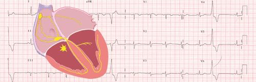 Extrasystoles ventriculaires sur l'ECG