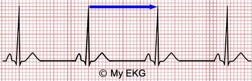 Calculadora da Frequência Cardíaca no ECG