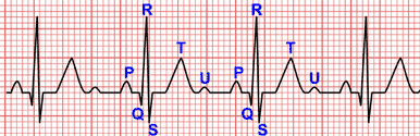 Electrocardiogram Waves