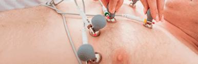 Électrodes de l'électrocardiogramme