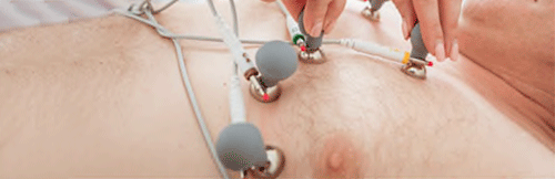 EKG Electrodes Placement