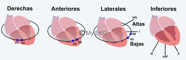 Correlação entre Derivações e Paredes Cardíacas