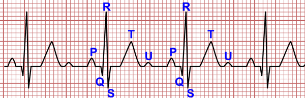 Waves of the Electrocardiogram