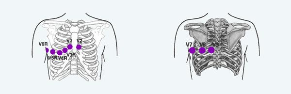 Derivações Posteriores e Direitas do ECG