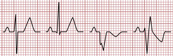 Morphologie du complexe QRS