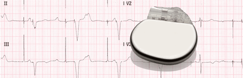 Electrocardiogram of Electronic Pacemaker