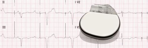 Electrocardiogramme d'un pacemaker électrique