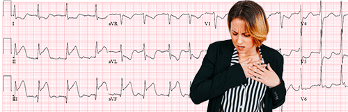 Acute Myocardial Infarction on the  Electrocardiogram