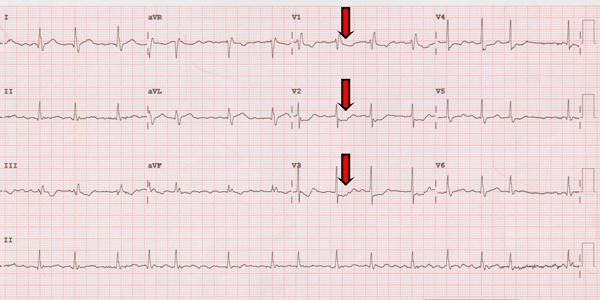 Electrocardiogram of a Posterior Myocardial Infarction