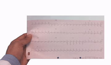 How to perform an Electrocardiogram
