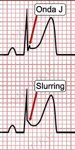 Onde J et Slurring, Électrocardiogramme de repolarisation précoce
