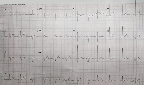 Eletrocardiograma da Comunicação Interatrial tipo Ostium Primum</i>