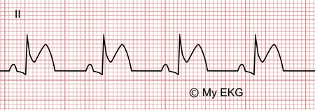 Électrocardiogramme de péricardite aiguë, phase 1