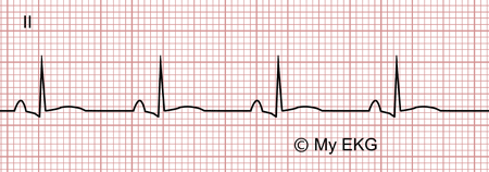 Electrocardiogram of Stage 2 of Acute Pericarditis