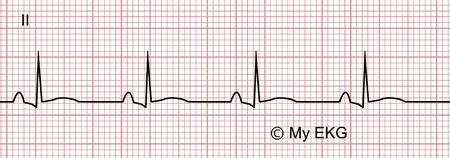 Électrocardiogramme de péricardite aiguë, phase 2