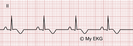 Electrocardiogram of Stage 3 of Acute Pericarditis