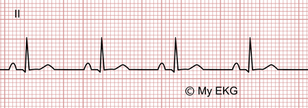 Électrocardiogramme de péricardite aiguë, phase 4