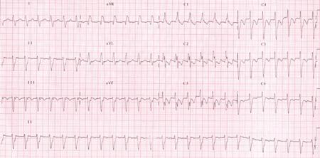 Posterior Fascicular Ventricular Tachycardia