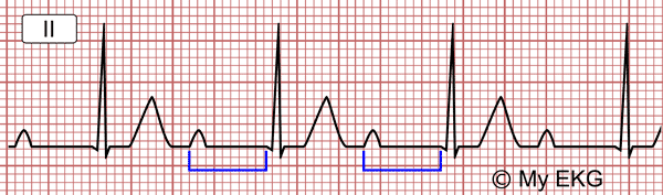 Prolonged PR Interval