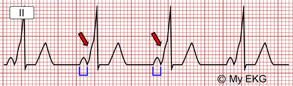 Wolff-Parkinson-White with Short PR Interval